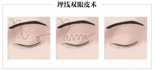 埋线双眼皮过程.png